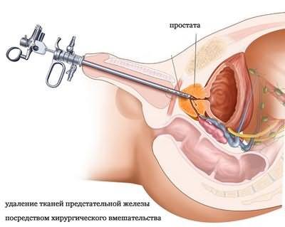 Простата для мужчин