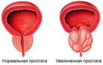 Латентное течение хронического простатита