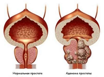 Народная медицина при лечение простатита