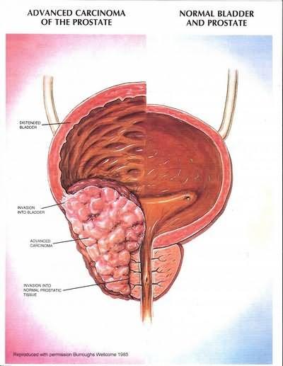 От чего появляется простатита у мужчин симптомы -