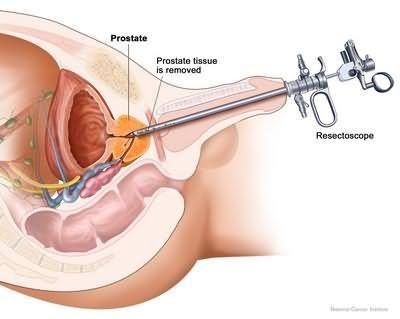 Алкоголь после операции предстательной железы